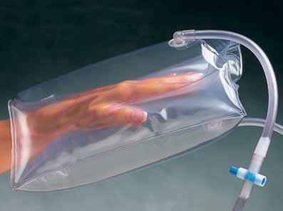 2-Kammer Splint