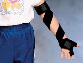 Applikationsbeispiel Hand & Arm
